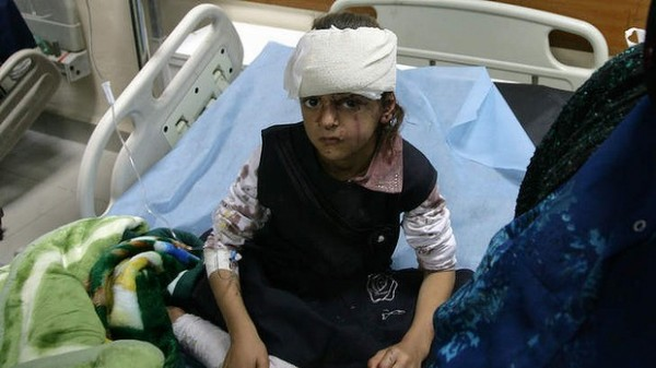 131006-iraq-victim-injured-by-suicide-bombers-2